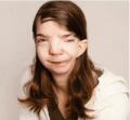 Penny Loker - Goldenhar Syndrome & Hemifacial microsomia - USA